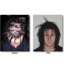 DermMatch Concealer - Kaschiert dünnes Haar