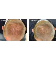 Hairmax Laserkamm LUX 9
