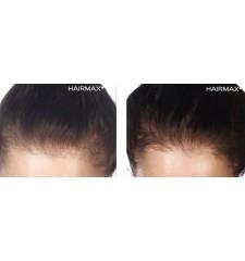 Hairmax Laserkamm Professional 12