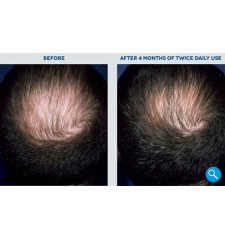 Rogaine (Regaine) für Männer ® Schaum 5% minoxidil - 3 Monate